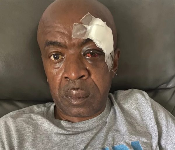 TWU Local 100 Calls for 'Eagle Teams' to Enforce Mask Rule following Vicious Attack on Bus Operator